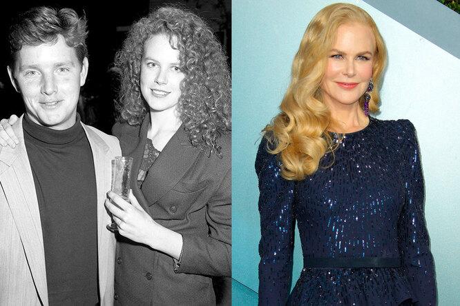 Николь Кидман, 1985 и сейчас