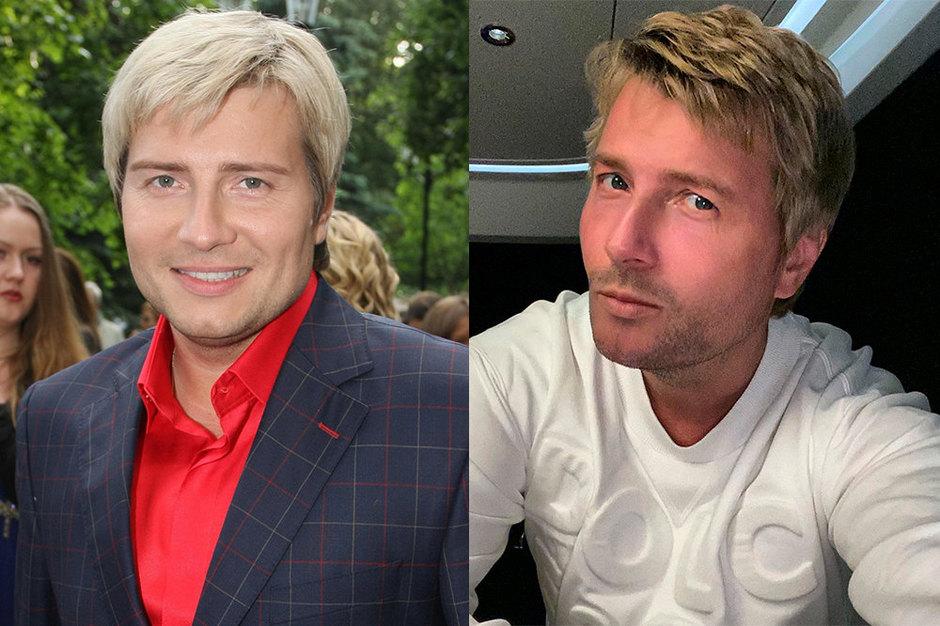 Николай Басков дои ппосле пластики