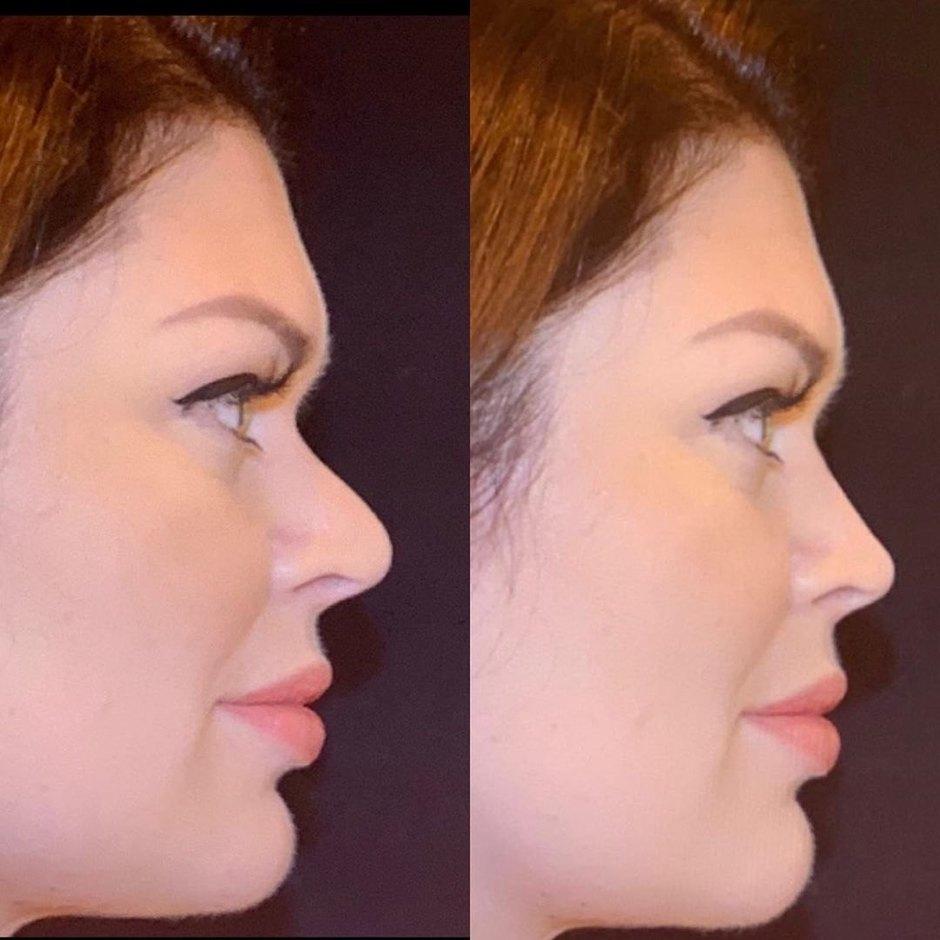 Юлия Рыбакова изменила форму носа
