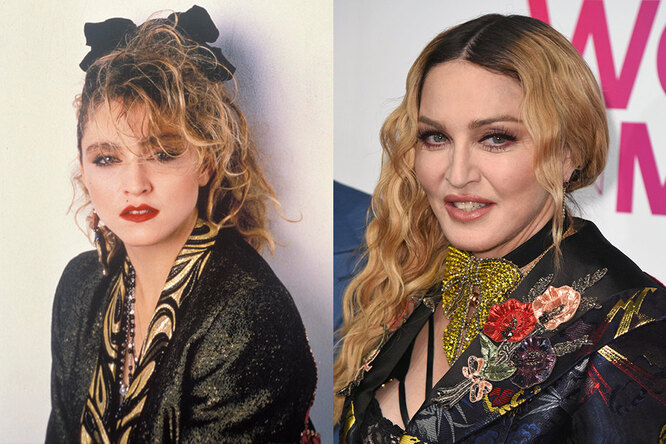 Мадонна до и после пластики